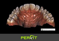 Sick of gagging on dental impressions? There is a better way. Digital scanning is quick and comfortable. Check out some of our recent testing with the Carestream CS3500. #digitaldentistry #digitaldentures #smilemakeover