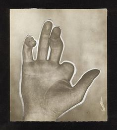 "photograph of the pitching hand of Hall of Famer Mordecai ""Three Finger"" Brown. It's amazing he could throw a baseball, let alone be as dominating as he was."