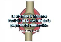 Photo drsuciu Le lien entre la vitamine D et la polyarthrite rhumatoïde