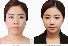 Crazy South Korean Plastic Surgery Before And After