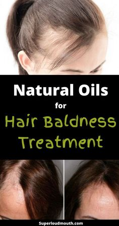 Natural Oils for Hair baldness treatment