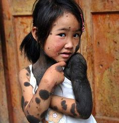 Rare Diseases were passed back and forth from America to Europe. They Native Americans did not know that they were passing the diseases ., mongolian circle a normal birth mark in indigenous tribes