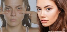 Who has dark circles under the eyes? 🙋♂️🙋♀️Don't be shy - many people do! There's a way to get rid of them. Learn how here: Facial Fillers, Lip Plumper, Skin Treatments, Dark Circles, Rid, Eyes, People, Blog, Lips