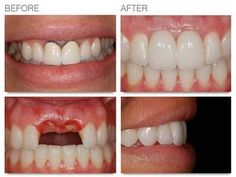 Prosthodontics is branch of dentistry concerned with the design, manufacture and fitting of artificial replacements for teeth and other parts of the mouth. Call at 80 23011500 94835 you will get a right solution. Cosmetic Dental Surgery, Cosmetic Dentistry, Best Dentist, Dental Problems, Dental Care, Teeth, Chandigarh, India, Design