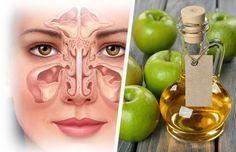 Hausmittel gegen verstopfte Nasennebenhöhlen Apfelessig ist sehr gesund und…