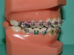dental braces for teeth