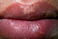 What causes tiny white bumps on upper lip