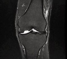 Osteochondritis dissecans of the knee. Osteochondral defect of  lateral aspect of  medial femoral condyle w underlying marrow oedema signal demonstrating low T1 + high PDFS / STIR signal.Degenerated PHMM w increased intra-meniscal signal intensity. No meniscal tear. Intact cruciate + collateral ligaments.The tibial plateau shows small 1 cm lobulated lesion demonstrating low T1 +high PD fat suppression / STIR signal. Mild joint effusion.Normal signal+ girth of  peri-articular musculature.