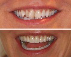 Dental teeth false teeth,dental care plan to clean teeth,how to make teeth healthy teeth whitening offers. Dental Teeth, Dental Hygiene, Dental Care, Veneers Teeth, Dental Veneers, Perfect Teeth, Porcelain Veneers