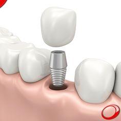 Sabia que os Implantes Dentários são em geral o tratamento dentário com a maior longevidade? www.pnid.pt