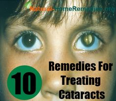 10 Natural Remedies For Treating Cataracts
