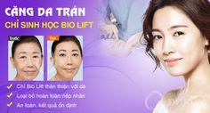 Căng da trán bằng chỉ Bio Lift an toàn và hiệu quả hoàn hảo