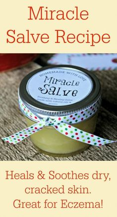 Miracle Salve Recipe for Hands, Face & Body (great for eczema!) from Primally Inspired