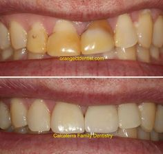 Before and after photos of all ceramic crowns on front teeth on a patient from Milford, CT. Dental Photos, Porcelain Crowns, Teeth Whitening Remedies, Front Teeth, Family Dentistry, Dental Services, Cosmetic Dentistry, Beautiful Smile, Cosmetics