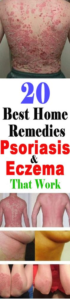 20 Best Home Remedies For Psoriasis and Eczema That Work | Healthy Eon #psoriasis #eczema #homeremedies