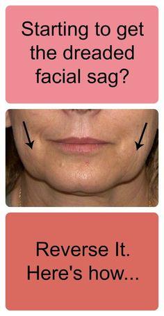 How To Reverse Facial Sagging