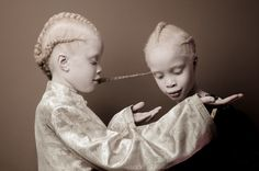 By the time they were Lara and Mara Bawar were already famous. The twins' albinism caught the eye of photographer Vinicius Terranova, who did portraits of them and their sister Sheila to show 'how. Albino Twins, Black Is Beautiful, Beautiful People, Beautiful Kids, Beautiful Images, Twin Models, Child Models, Portraits, Photo Series
