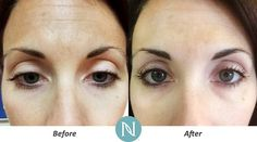 A little Nerium a day keeps the wrinkles away. Start your new routine now: http://ift.tt/29qT3WI