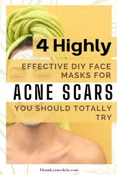 Here are 4 acne scars to consider. Make your own face mask to get beautiful skin without spending a fortune. Read how it can be done.#face mask diy acne #diy mask face #mask for acne Pimple Marks, Pimples, Diy Mask, Diy Face Mask, Acne Face Mask, Acne Scars, Beautiful