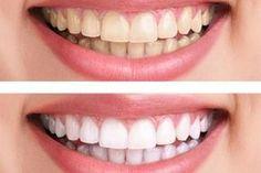 Como Clarear os Dentes em Casa com Apenas 2 Ingredientes,simples e natural. Além disso, os tratamentos dentários virou moda para clarear os dentes. No entanto, os produtos feitos com final invasiva por danificar o revestimento
