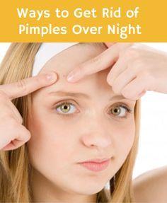 pimple overnight