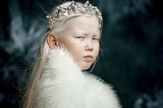 8-Year-Old Siberian Snow White Surprises Modeling Agencies With Unique Beauty, Gets Flooded With Offers