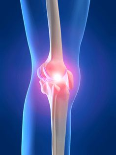 Systemic Inflammation Often Caused By Stress And Poor Diet Is One Of The Main  C B Arthritis Pain Reliefrheumatoid