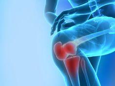 Asocian la masa muscular con la salud de los huesos | Info7 | Vida y Estilo