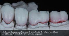 Guilherme Saavedra relata caso de setorização das etapas protéticas na obtenção de resultados previsíveis e longevos.