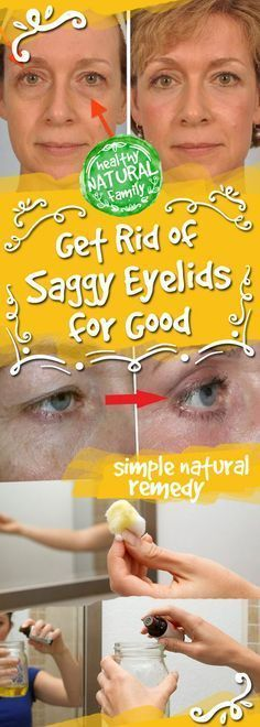 If you are struggling with saggy eyelids, then you must have gone through the frustrating process of applying make-up. The droopy eyelids make you look older, tired, and weary. This usually comes w…