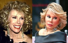 Have a look at these before and after plastic surgery pictures of Joan Rivers, its a bit startling so beware.