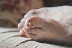 O czym świadczy zmiana koloru paznokcia?