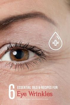 Want an anti-aging treatment that actually works?! Using essential oils can help to prevent wrinkles on your forehead, neck, and around your eyes. Here are 6 of my favorite essential oils and home remedies for eye wrinkles. | prevent wrinkles around your Oily Skin Treatment, Anti Aging Treatments, Wrinkle Remedies, Skin Care Remedies, Natural Remedies, Under Eye Wrinkles, Prevent Wrinkles, Essential Oils For Skin