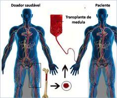 transplante medula ossea doador e receptor                                                                                                                                                                                 Mais