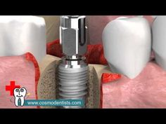 Cosmozone is the best dental clinic in Greater Noida.They offers services such as facial cosmetic surgery, cosmetic dentistry, dental implants