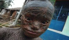 This shocking video a ten-year-old boy who has been dubbed the 'human snake' - because a rare skin condition causes him to SHED his skin every month. The you. Serpent, Old Boys, Snake, Lion Sculpture, Bird, Animals, Snake Skin, Little Girls, Flakes