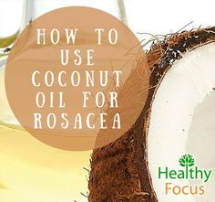 Good skin tips coconut oil Coconut oil for Rosacea- kills mites, and fights bacteria which cause rosacea flare ups. Coconut oil also helps healing skin with moisturizers and Vitamin E Coconut Oil Facial, Coconut Oil Moisturizer, Coconut Oil Lotion, Coconut Oil For Acne, Coconut Oil Uses, Benefits Of Coconut Oil, Organic Coconut Oil, Homemade Moisturizer, Vitamin E