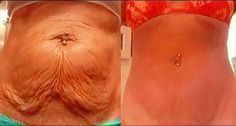 After losing weight in the abdomen the first consequence is the emergence and formation of the so-called saggy skin a mass of fat and loose skin with fatty texture. In this article learn how to eliminate sagging skin cleverly. Aside from cosmetic surge Flabby Stomach, Tighter Stomach, Loose Skin, Sagging Skin, Hair Loss Remedies, Fat Loss Diet, Lose Weight Naturally, Loose Weight Fast, Fat Fast