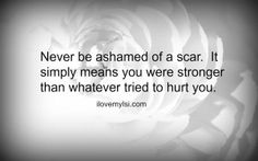 Scars mean you're strong than whatever tried to hurt you