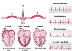 bradycardia vs tachycardia ekg | StudyDroid: FlashCards on the web, and in your hand!