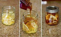 Natuurlijke remedies tegen een droge hoest.  Zelf hoestdrank maken.