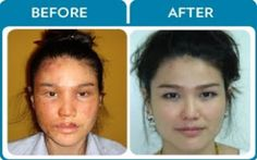 Enjoy the life with confidence-#facial Burn Scar Removal..... For more details visit:http://goo.gl/mvQCJ9