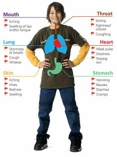 """What is involved in a """"potentially life-threatening reaction""""? // Symptoms and signs of anaphylaxis #foodallergies"""