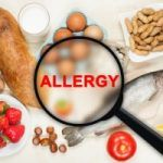 Allergie alimentari: fratelli bimbi allergici non sempre allergici