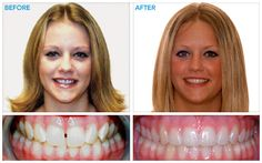 Damon System Braces, premium braces for children, teens and adults. Straighten teeth faster with less treatments. Find a local orthodontist using our special locator services for fast and comfortable treatment! Kids Braces, Teeth Braces, Damon Braces, Braces Before And After, Teeth Straightening, Brace Yourself, Orthodontics, Fitspiration, Smile