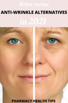 This guide on how does Botox work is short and sweet! You will learn about what is Botox made of and reasons not to get Botox. Highly recommend for anyone thinking of getting Botox! Under Eye Creases, Under Eye Wrinkles, Under Eye Puffiness, Face Wrinkles, Eye Treatment, How Does Botox Work, Natural Wrinkle Remedies, Under Eye Hollows