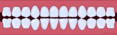 Braces Color Picker  My daughter would have loved to see what the colors would look like before her braces appointments.  We'll have to do this the next time around and maybe I can steer her towards the pretty colors!!!