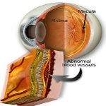 Macular Degeneration is the condition in which the cells of the macula – the tiny central spot in the retina responsible for sharp vision – deteriorate progressively, resulting in loss of central vision and leaving only peripheral vision. It occurs in people aged 50 and over, and is the main cause of age-related blindness in the world. Here are 9 Natural Treatments for Macular Degeneration.