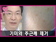 기미와 주근깨 제거 - YouTube Beauty Care, Hair Makeup, Remedies, Skin Care, Cosmetics, Healthy, Tips, Youtube, Beauty Products