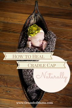 How To Heal Cradle Cap Naturally